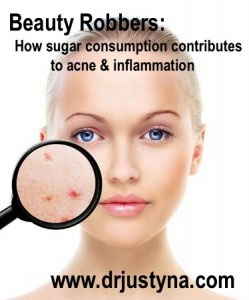 Beauty Robbers: How sugar consumption contributes to acne and inflammation